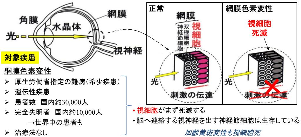 人工網膜の治療対象とする網膜色素変性(提供:岡山大学)