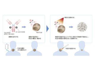 楽天と島津,光免疫療法に関する機器の開発で協業