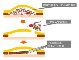 理研と先端医療振興財団、iPS細胞由来網膜色素上皮シート移植研究、厚労省へ申請