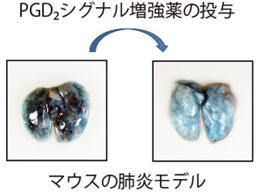 東大、肺炎の進展を阻止する新たな分子を発見