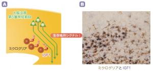 阪大、脳の免疫細胞が運動の神経細胞を保護することを発見
