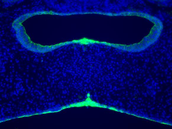 大阪大,口蓋突起の遺伝子発現のデータベースを作成,強く発現する細胞接着因子を発見