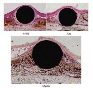 NIMSと東京医歯大、骨との結合が3倍速くなるコーティング法を開発