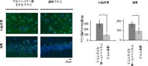 理研、分子シャペロンがアミロイドβ凝集を抑制し低毒化することを発見
