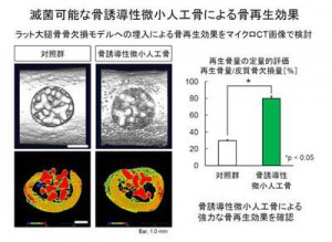 東大、滅菌可能な骨誘導性微小人工骨を開発