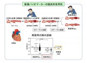 東大、冠動脈狭窄症の血液検査法を新開発