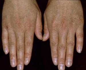 名大、皮膚の遺伝病、網状肢端色素沈着症の原因遺伝子を解明