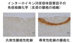 名大、汎発性膿疱性乾癬の病因の解明