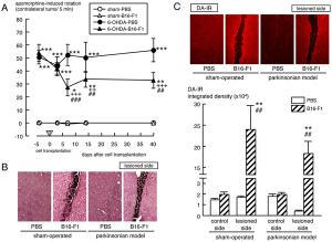 岡山大、皮膚色素細胞の脳内移植でパーキンソン病モデルの症状改善