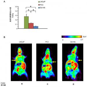 放医研ら,PETを用い個別のがん治療効果を予測する方法を開発