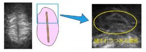 基礎生物研など、細胞分裂で仕切りを作る過程を見ることに成功