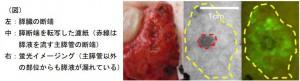 東大、膵臓手術で発生する「膵液の漏れ」を可視化する蛍光イメージング法を開発