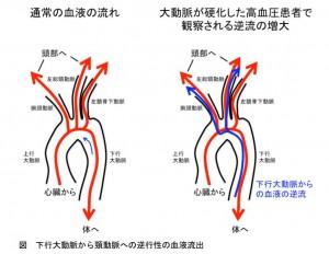 東北大、大動脈硬化に伴う原因不明脳梗塞の機序を解明