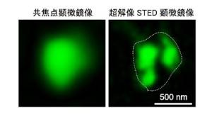 生理学研、神経細胞シナプスにおける脂質修飾酵素DHHC2の役割を解明