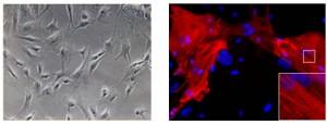 慶大、ヒトの心臓線維芽細胞から心筋様細胞を直接作製することに成功