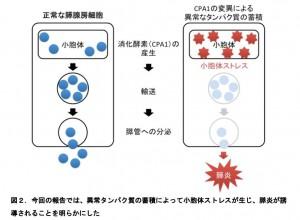 東北大、膵炎の新しい原因遺伝子を発見