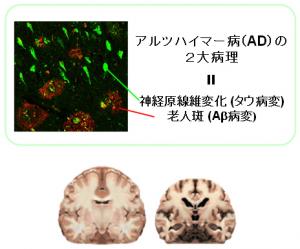 放医研,アルツハイマーの原因物質の可視化に成功
