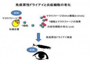 慶大、重症ドライアイの発症にマクロファージの老化が関与することを発見
