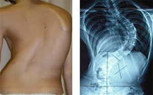 理研と慶大、思春期特発性側彎症の重症化に関連するゲノム領域を発見