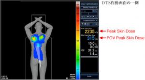 東芝メディカルシステムズ,X線血管撮影中にリアルタイムに皮膚入射線量をモニタリングする技術を開発