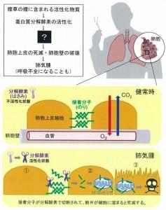 近畿大ほか、「肺気腫」の発症メカニズムを発見