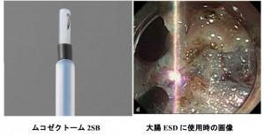 岡山大学開発の内視鏡用機器、大腸癌治療で有用性確認