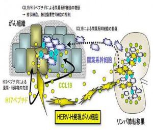 慶大,がん転移を促進する新たな仕組みを解明